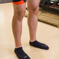 Analyse des jambes au laser
